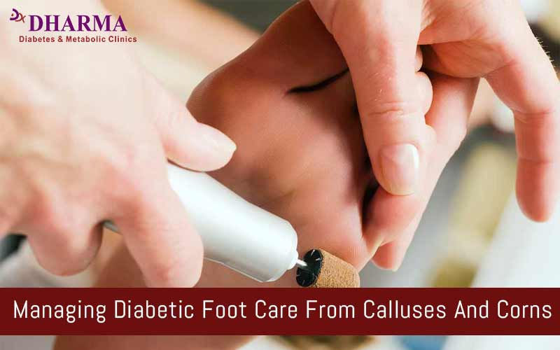 Managing Diabetic Foot Care From Calluses And Corns