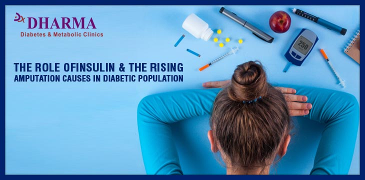 The Role Of Insulin & The Rising Amputation Causes In Diabetic Population