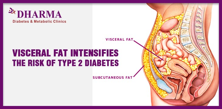 visceral fat - Type 2 Diabetes Doctor in Delhi Dr. Mudit Sabharwal