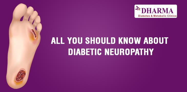 All You Should Know About Diabetic Neuropathy