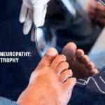 The Rare Striking Neuropathy: Diabetic Amyotrophy